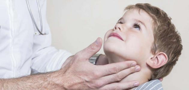علاج الغدة النكافية للأطفال