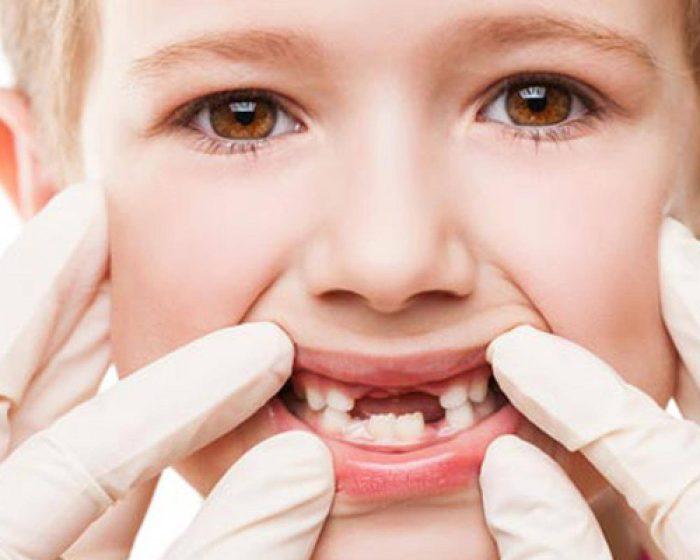 دواء مسكن ألم الأسنان للأطفال