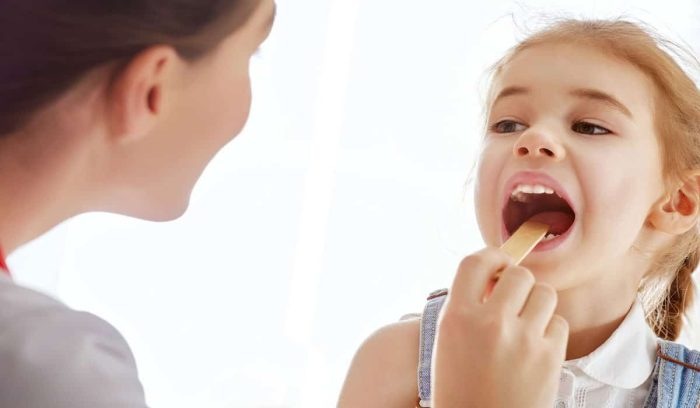 علاج التهاب اللوز للأطفال