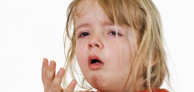 علاج الكحة والبلغم للأطفال