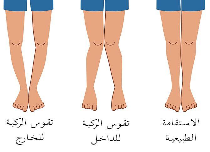 علاج تقوس الساقين للأطفال