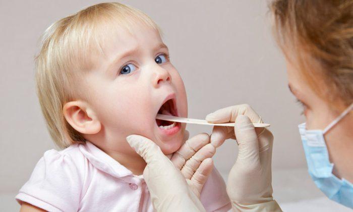 أسماء أدوية التهاب الحلق للأطفال
