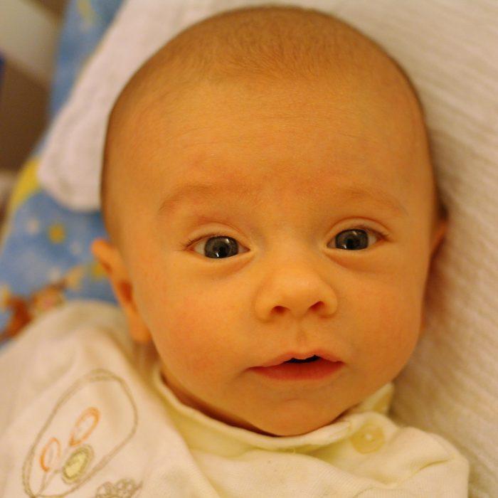 نسبة أبو صفار عند الأطفال حديثي الولادة