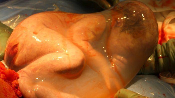 هل نزول الماء خطر على الجنين؟