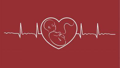 أسباب توقف نبض الجنين دون أن ينزل دم