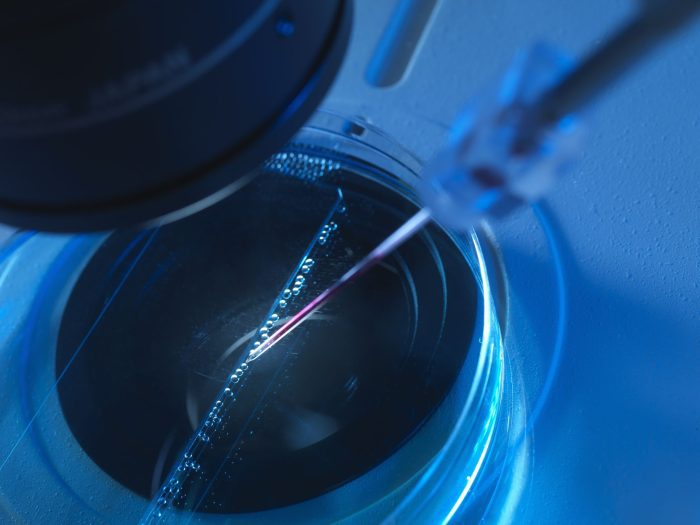 تجربتي في تحديد نوع الجنين بالحقن المجهري