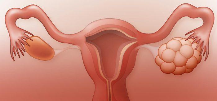 وجود كيس بجانب الجنين