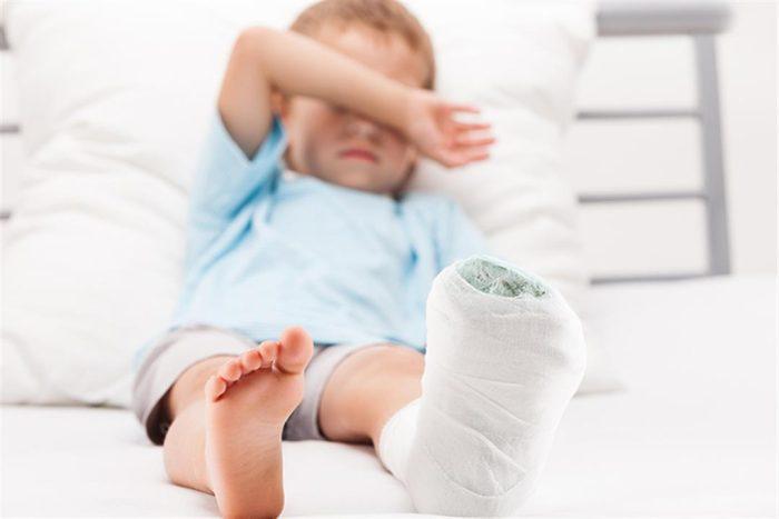 مدة التئام عظام الساق عند الأطفال