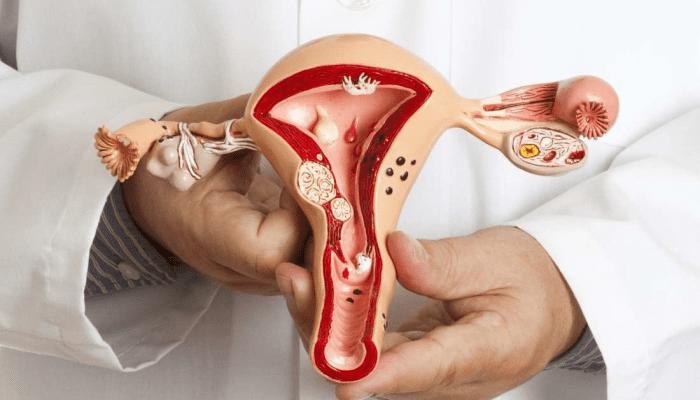أعراض سرطان الرحم للعذراء