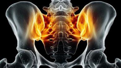 أعراض التهاب مفصل الحوض عند النساء